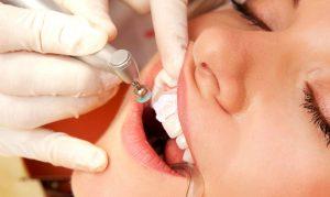 Гигиеническая чистка зубов