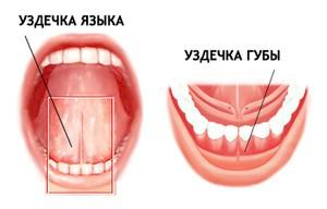 Пластика уздечки губы и языка | Стоматология КЛЕОМЕД